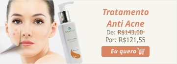 300x161_AntiAcne-1